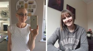 Image of the author during and after chemotherapy for the blog post Positive Affirmations for Self-Love